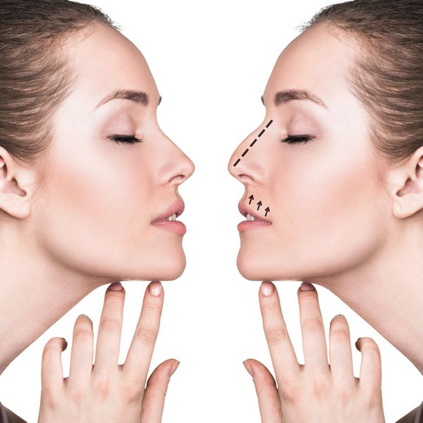 rhinoplasty definition