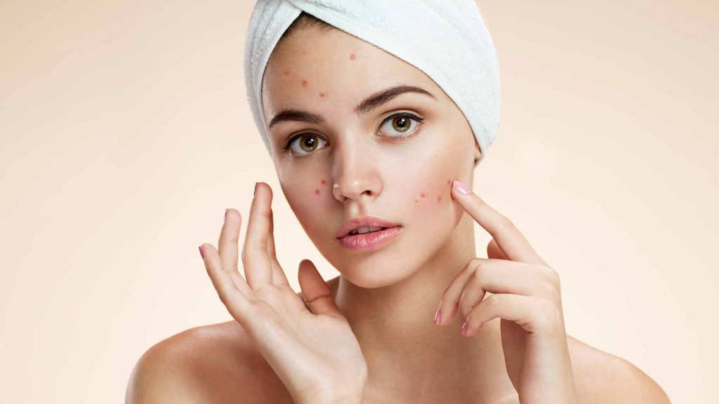 Natural acne solution